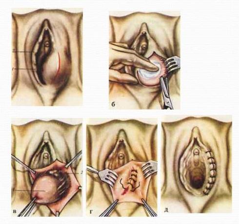 Киста уретры у женщин симптомы