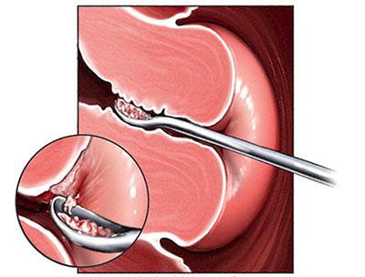 Гистероскопия+раздельно-диагностическое выскабливание