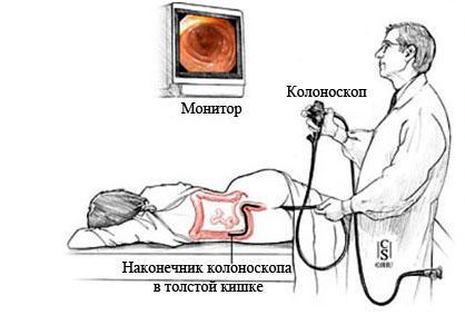 Колоноскопия тотальна