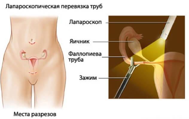 Лапароскопическая стерилизация