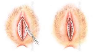 Пластика половых губ