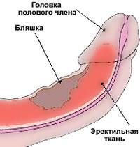 хирургическое лечение болезни Пейрони